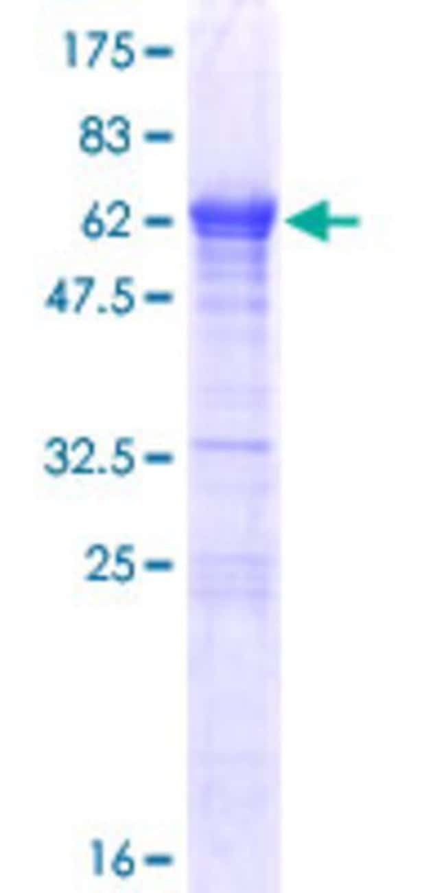Abnova™Human LCORL Full-length ORF (NP_710153.2, 1 a.a. - 318 a.a.) Recombinant Protein with GST-tag at N-terminal 10μg Abnova™Human LCORL Full-length ORF (NP_710153.2, 1 a.a. - 318 a.a.) Recombinant Protein with GST-tag at N-terminal