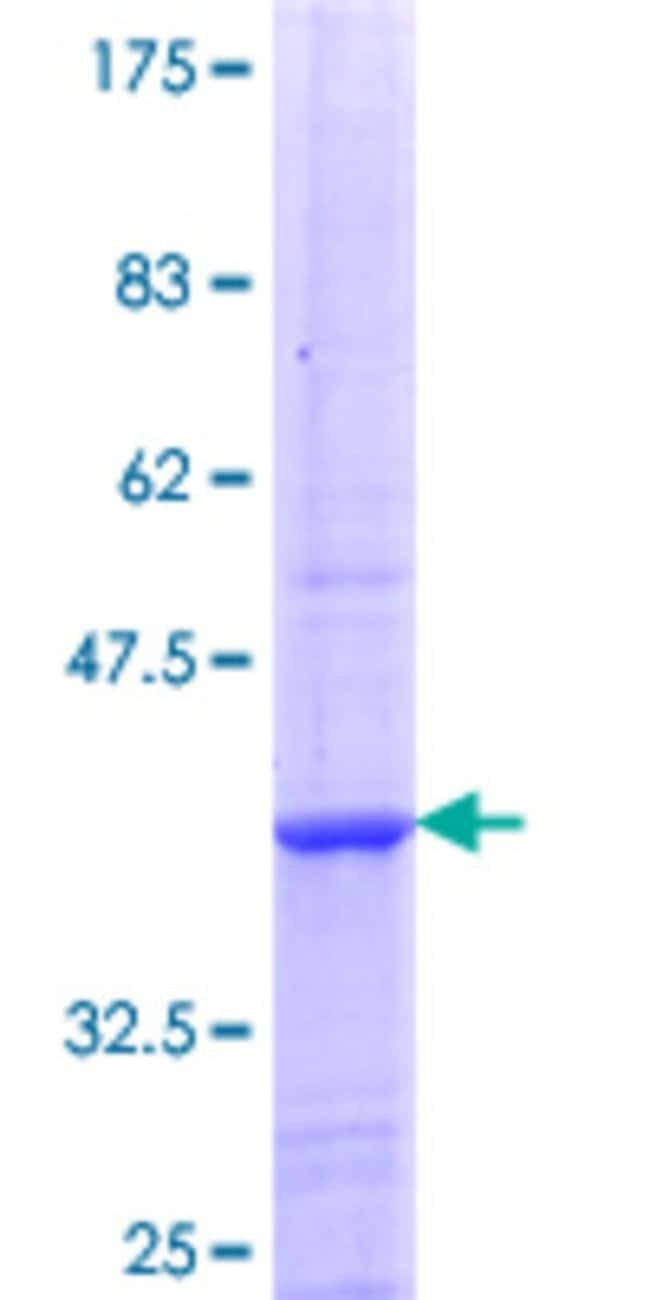 Abnova™Human NAALADL2 Partial ORF (NP_996898.1, 696 a.a. - 795 a.a.) Recombinant Protein with GST-tag at N-terminal 25μg Abnova™Human NAALADL2 Partial ORF (NP_996898.1, 696 a.a. - 795 a.a.) Recombinant Protein with GST-tag at N-terminal