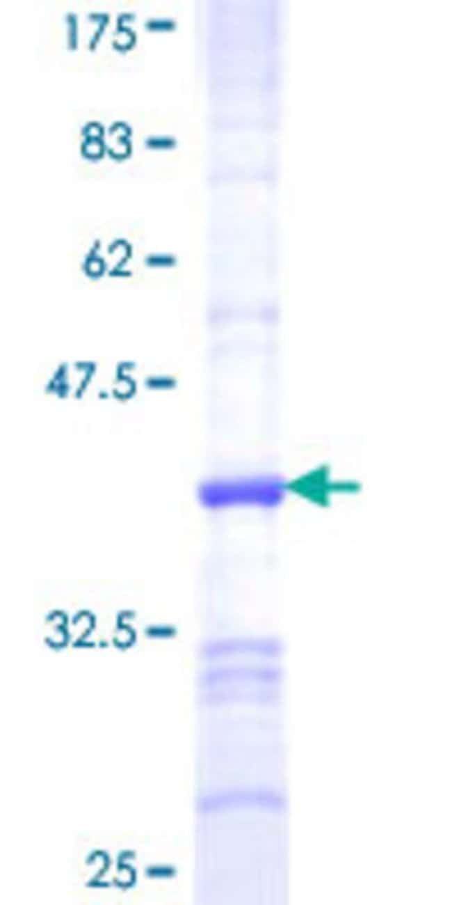 Abnova™Human RASGEF1C Partial ORF (NP_778232, 168 a.a. - 260 a.a.) Recombinant Protein with GST-tag at N-terminal 10μg Abnova™Human RASGEF1C Partial ORF (NP_778232, 168 a.a. - 260 a.a.) Recombinant Protein with GST-tag at N-terminal