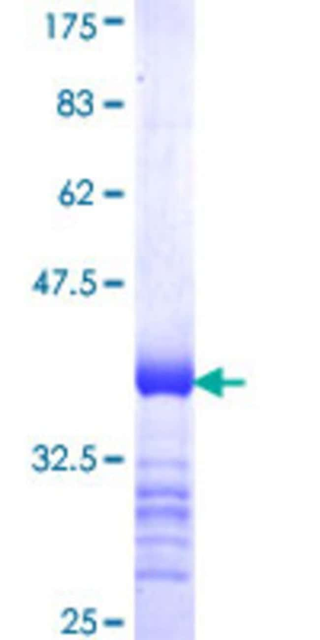Abnova™Human BCL6B Partial ORF (NP_862827, 248 a.a. - 345 a.a.) Recombinant Protein with GST-tag at N-terminal 25μg Abnova™Human BCL6B Partial ORF (NP_862827, 248 a.a. - 345 a.a.) Recombinant Protein with GST-tag at N-terminal