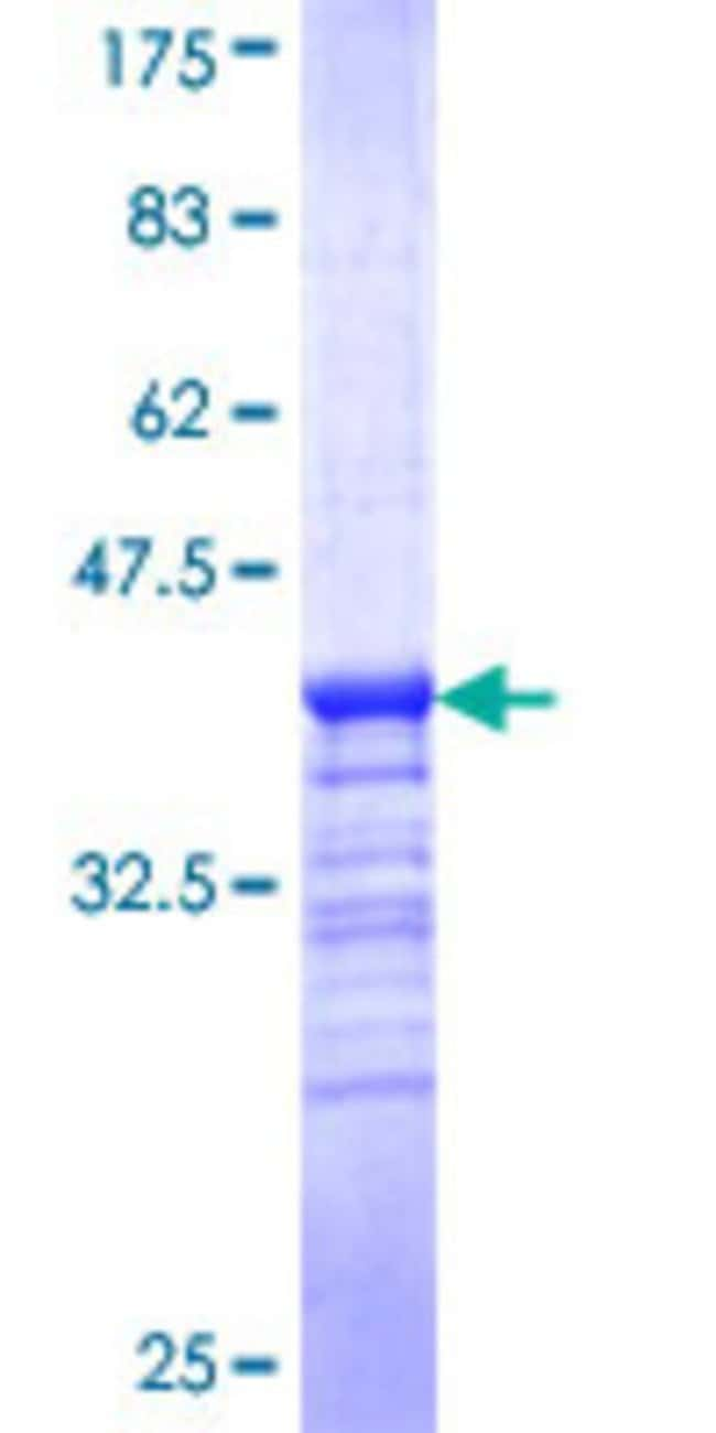 Abnova™Human GCET2 Partial ORF (NP_689998, 79 a.a. - 178 a.a.) Recombinant Protein with GST-tag at N-terminal 10μg Abnova™Human GCET2 Partial ORF (NP_689998, 79 a.a. - 178 a.a.) Recombinant Protein with GST-tag at N-terminal
