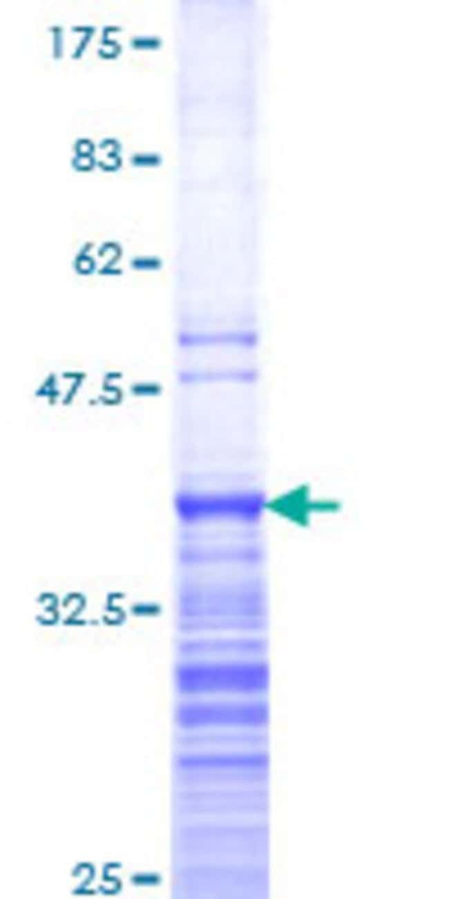 Abnova™Human C10orf48 Partial ORF (NP_775847, 1 a.a. - 95 a.a.) Recombinant Protein with GST-tag at N-terminal 25μg Abnova™Human C10orf48 Partial ORF (NP_775847, 1 a.a. - 95 a.a.) Recombinant Protein with GST-tag at N-terminal