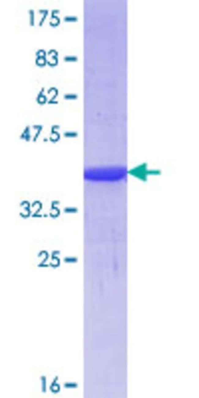 Abnova™ Human FOXR1 Partial ORF (NP_859072.1, 1 a.a. - 99 a.a.) Recombinant Protein with GST-tag at N-terminal 10μg Abnova™ Human FOXR1 Partial ORF (NP_859072.1, 1 a.a. - 99 a.a.) Recombinant Protein with GST-tag at N-terminal