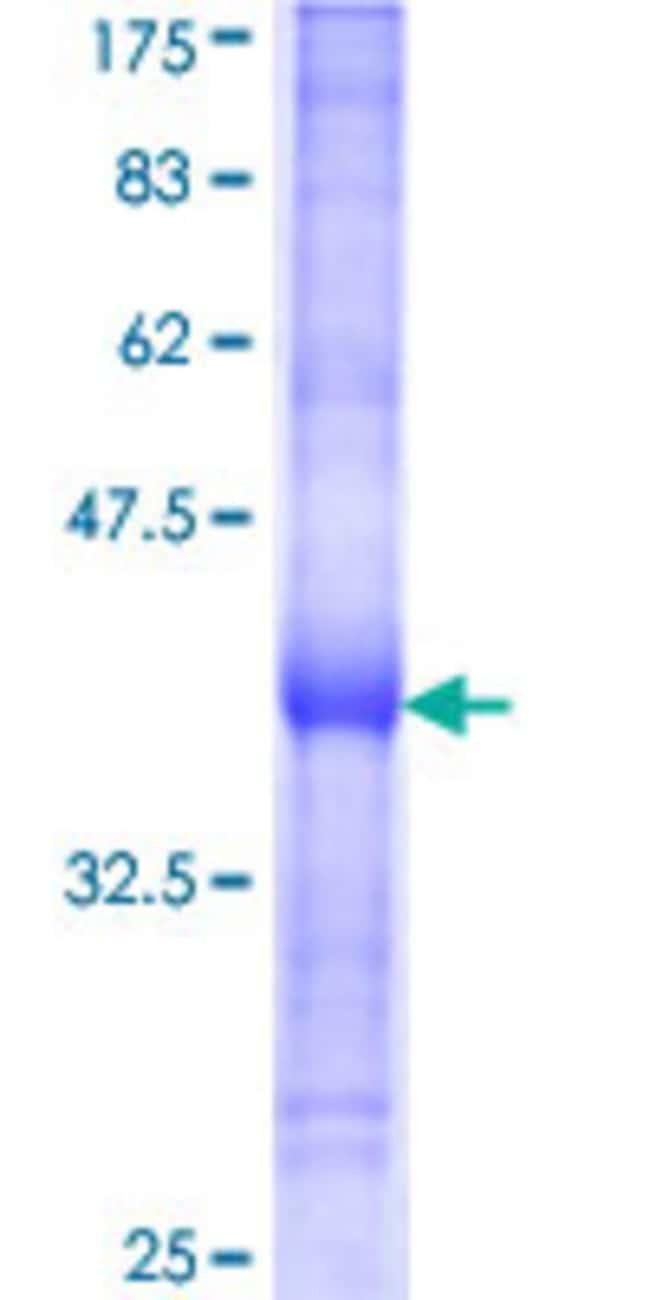 Abnova Human LOC283155 Partial ORF (XP_208545, 207 a.a. - 297 a.a.) Recombinant