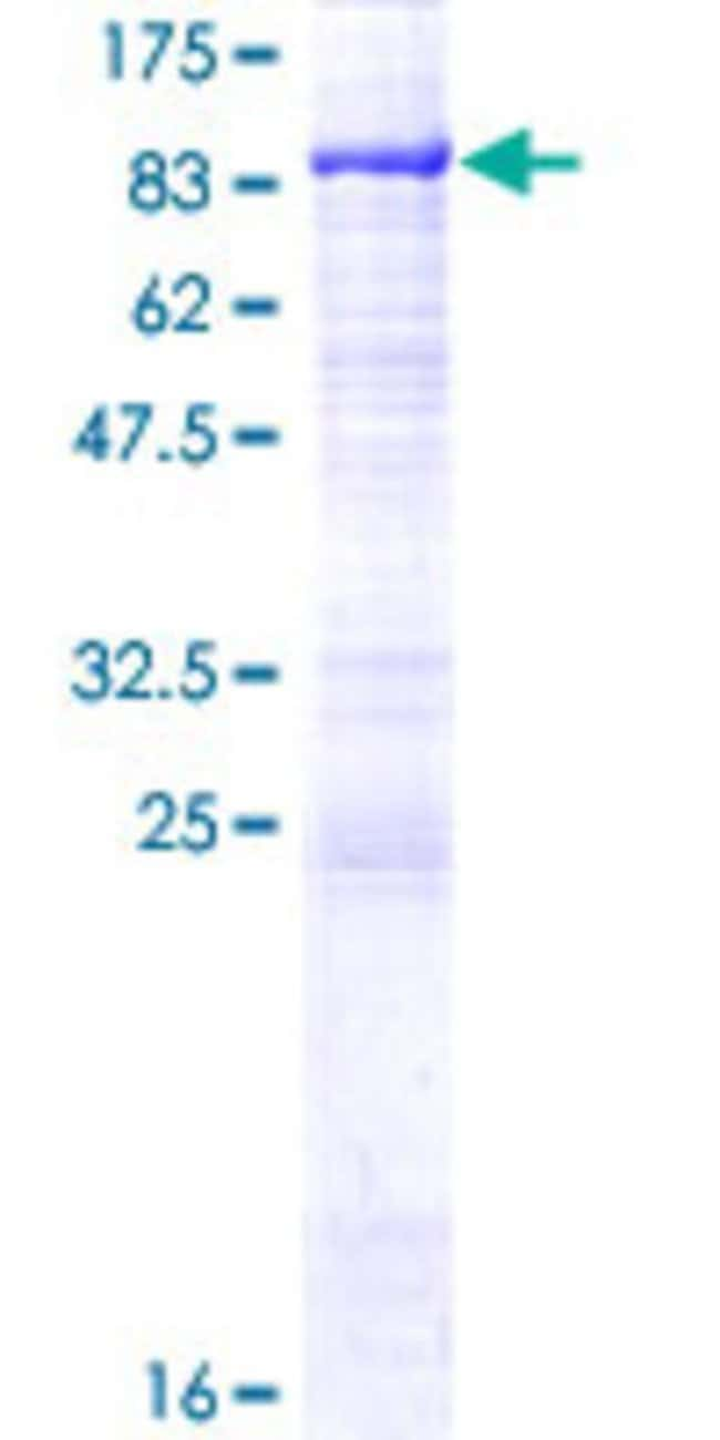 Abnova™Human PGM2L1 Full-length ORF (AAH59360.1, 1 a.a. - 622 a.a.) Recombinant Protein with GST-tag at N-terminal 25μg Abnova™Human PGM2L1 Full-length ORF (AAH59360.1, 1 a.a. - 622 a.a.) Recombinant Protein with GST-tag at N-terminal
