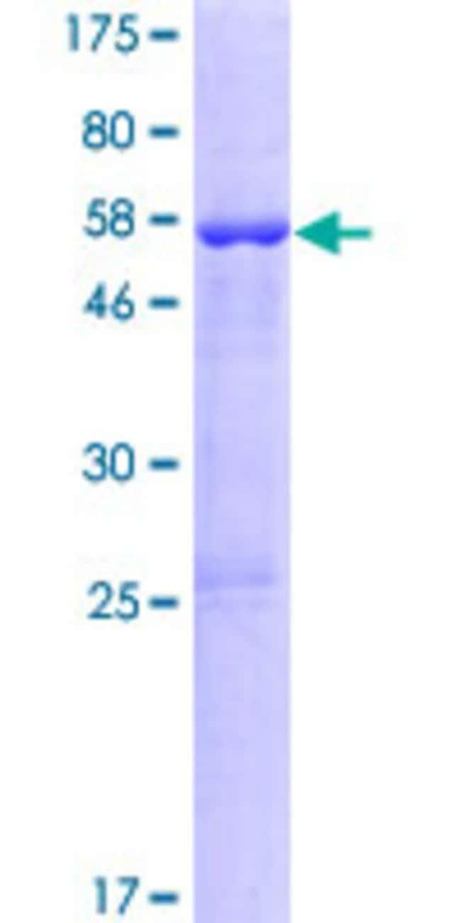 Abnova Human KCNRG Full-length ORF (NP_775876.1, 1 a.a. - 272 a.a.) Recombinant
