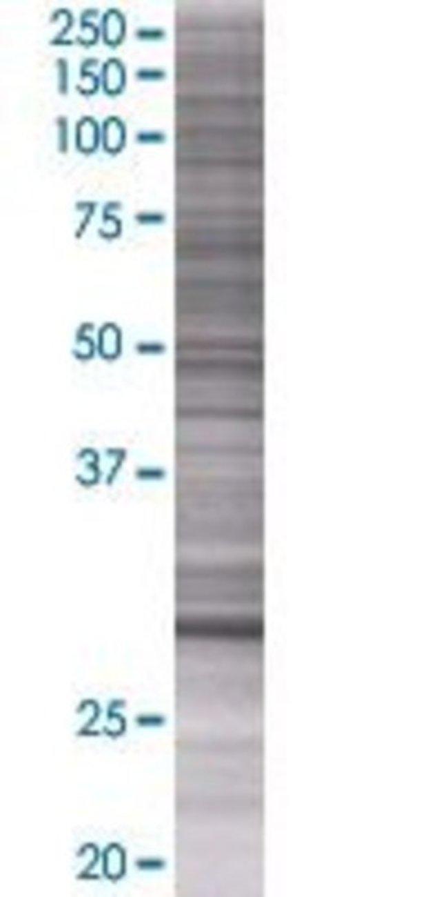 Abnova KCNRG 293T Cell Transient Overexpression Lysate (Denatured) (T01)