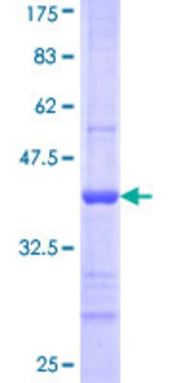 Abnova™Human FBXL22 Partial ORF (NP_976307, 1 a.a. - 110 a.a.) Recombinant Protein with GST-tag at N-terminal 25μg Abnova™Human FBXL22 Partial ORF (NP_976307, 1 a.a. - 110 a.a.) Recombinant Protein with GST-tag at N-terminal