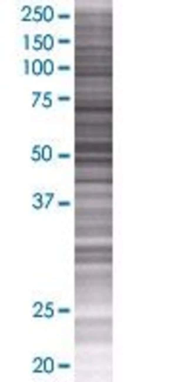 Abnova HEXDC 293T Cell Transient Overexpression Lysate (Denatured) 100µL:Life