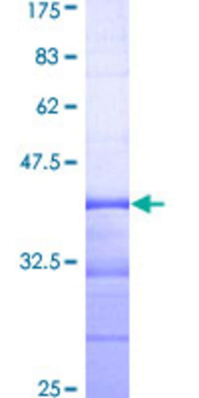 Abnova™Human NEK8 Partial ORF (NP_835464, 482 a.a. - 581 a.a.) Recombinant Protein with GST-tag at N-terminal 10μg Abnova™Human NEK8 Partial ORF (NP_835464, 482 a.a. - 581 a.a.) Recombinant Protein with GST-tag at N-terminal