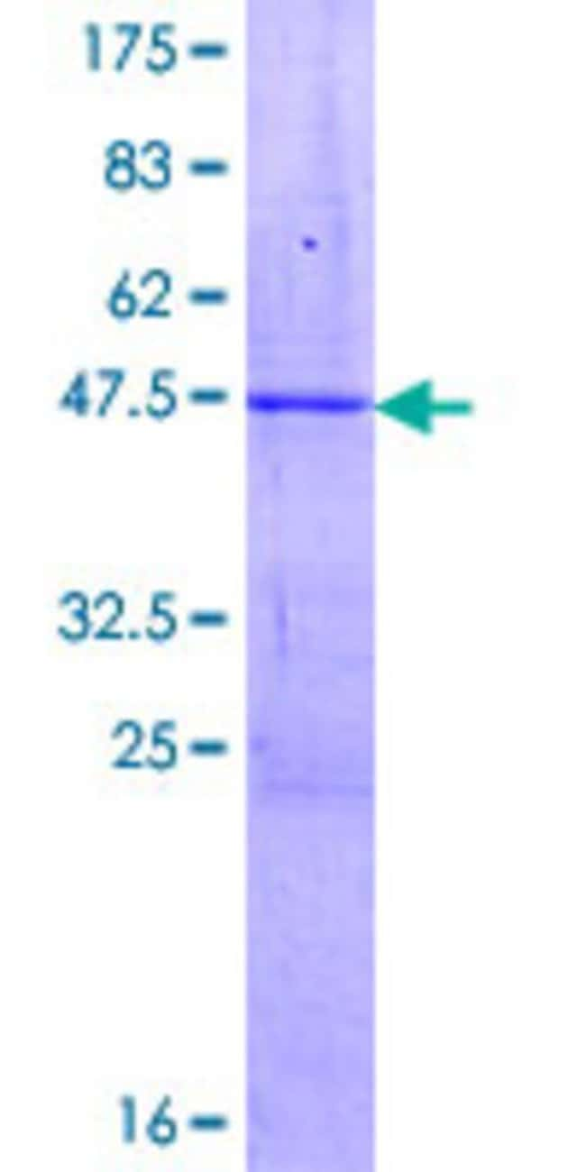 Abnova™Human ZSCAN1 Full-length ORF (AAH48099.1, 1 a.a. - 178 a.a.) Recombinant Protein with GST-tag at N-terminal 10μg Abnova™Human ZSCAN1 Full-length ORF (AAH48099.1, 1 a.a. - 178 a.a.) Recombinant Protein with GST-tag at N-terminal