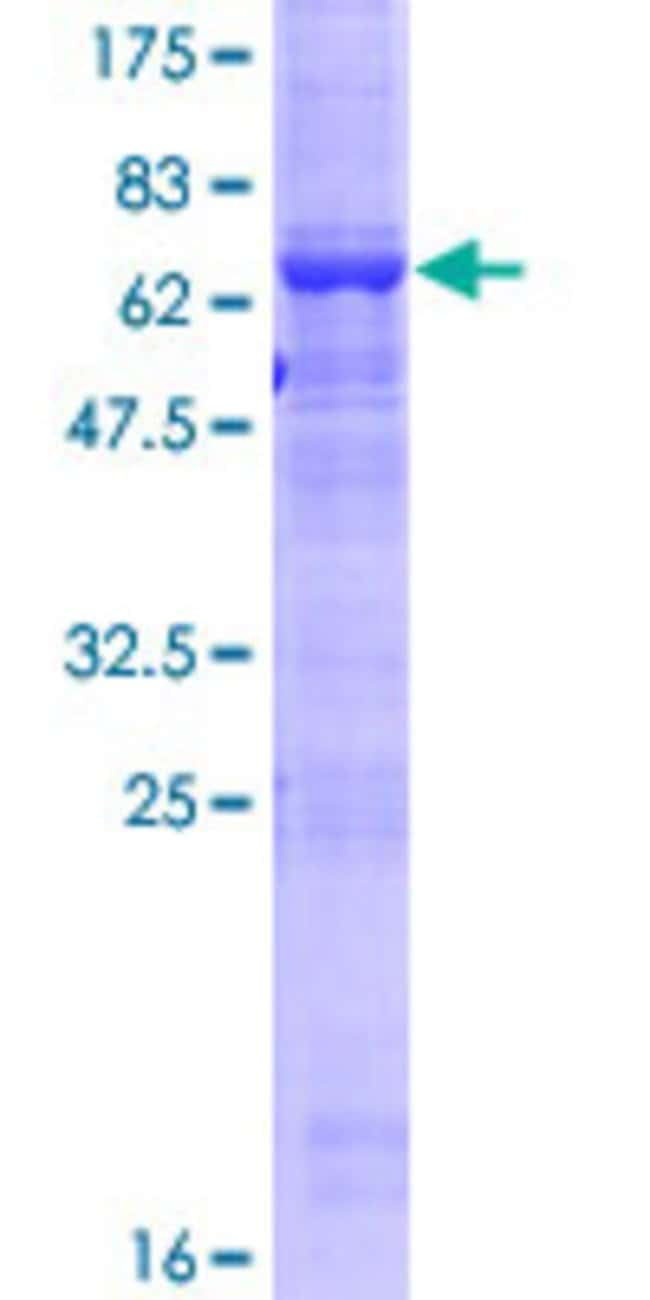 Abnova™Human MGC33407 Full-length ORF (NP_848620.1, 1 a.a. - 416 a.a.) Recombinant Protein with GST-tag at N-terminal 25μg Abnova™Human MGC33407 Full-length ORF (NP_848620.1, 1 a.a. - 416 a.a.) Recombinant Protein with GST-tag at N-terminal
