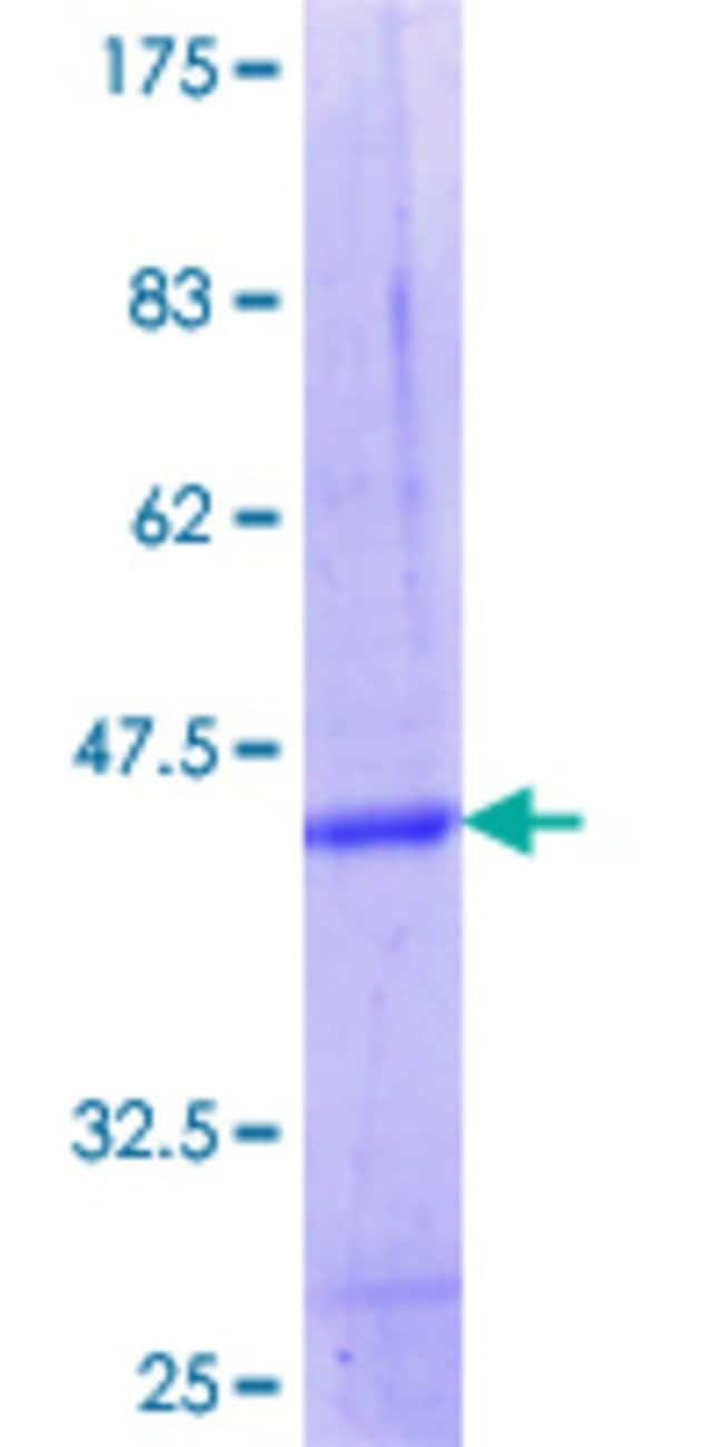 Abnova™Human FBXW12 Partial ORF (NP_996985.1, 265 a.a. - 354 a.a.) Recombinant Protein with GST-tag at N-terminal 10μg Abnova™Human FBXW12 Partial ORF (NP_996985.1, 265 a.a. - 354 a.a.) Recombinant Protein with GST-tag at N-terminal