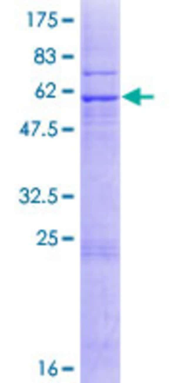 Abnova™Human COX18 Full-length ORF (NP_776188.1, 1 a.a. - 333 a.a.) Recombinant Protein with GST-tag at N-terminal 10μg Abnova™Human COX18 Full-length ORF (NP_776188.1, 1 a.a. - 333 a.a.) Recombinant Protein with GST-tag at N-terminal