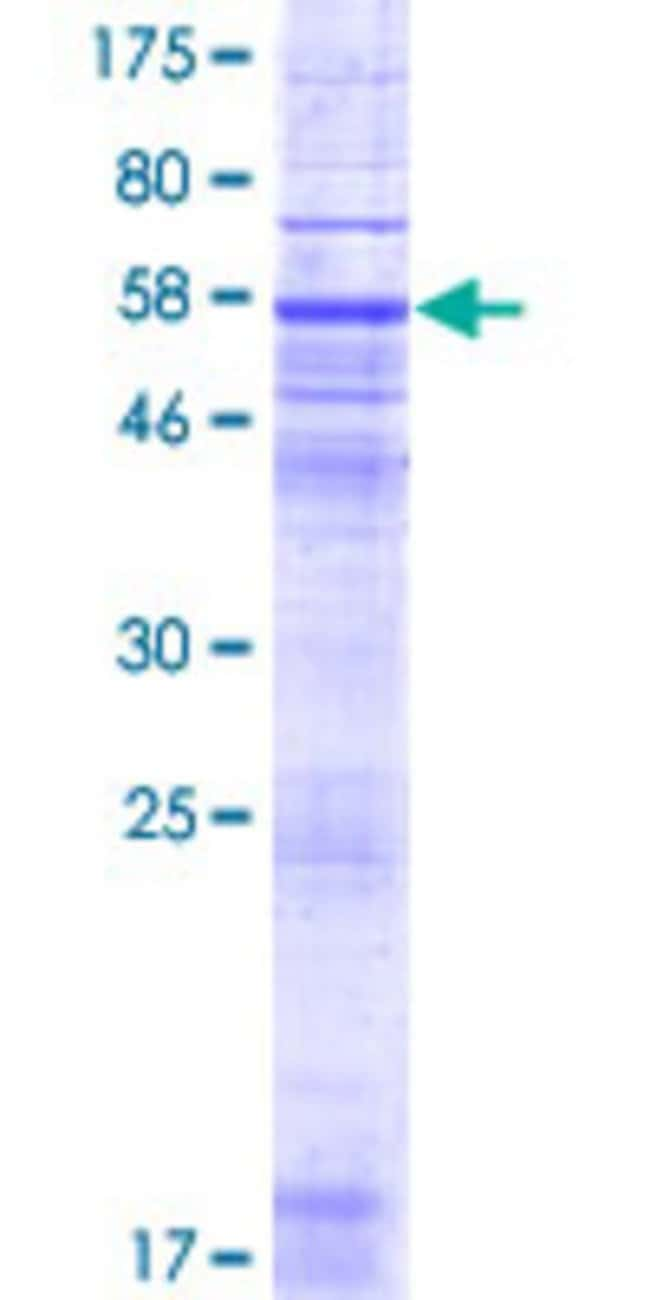 Abnova™Human RNF175 Full-length ORF (NP_775933.1, 1 a.a. - 328 a.a.) Recombinant Protein with GST-tag at N-terminal 10μg Abnova™Human RNF175 Full-length ORF (NP_775933.1, 1 a.a. - 328 a.a.) Recombinant Protein with GST-tag at N-terminal