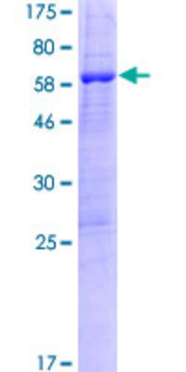 Abnova™Human PPIL6 Full-length ORF (NP_775943.1, 1 a.a. - 311 a.a.) Recombinant Protein with GST-tag at N-terminal 10μg Abnova™Human PPIL6 Full-length ORF (NP_775943.1, 1 a.a. - 311 a.a.) Recombinant Protein with GST-tag at N-terminal