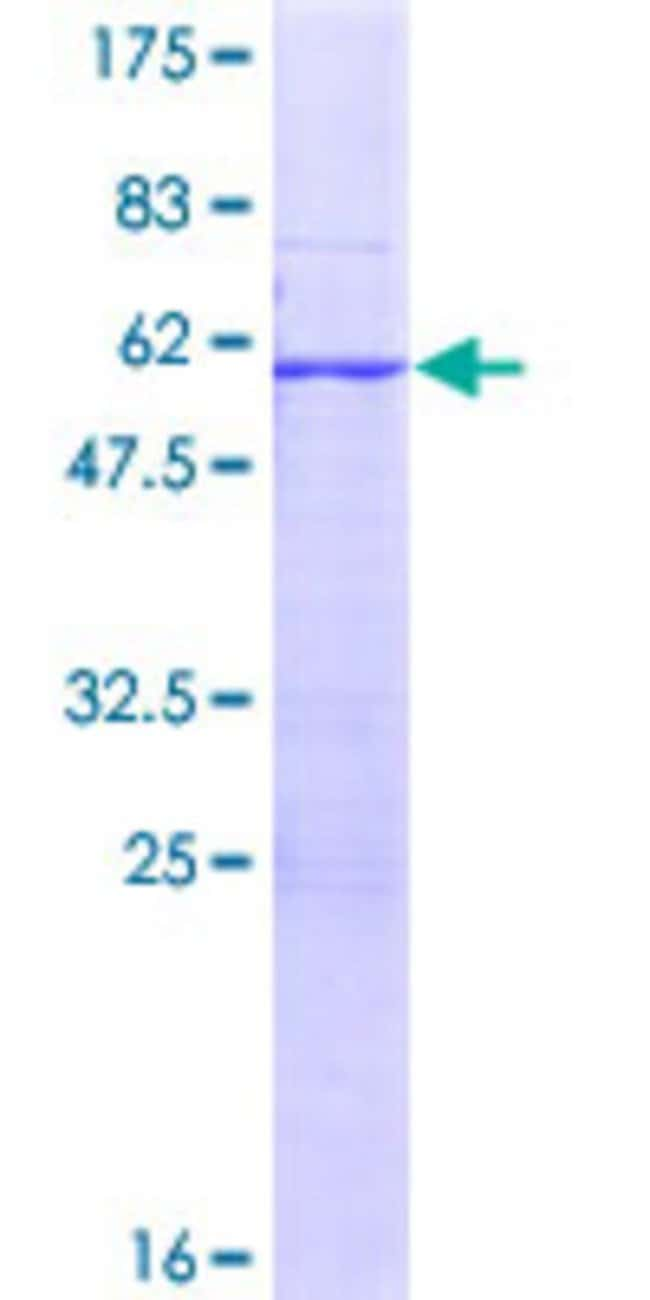 Abnova™ Human RPL7L1 Full-length ORF (NP_940888.2, 1 a.a. - 246 a.a.) Recombinant Protein with GST-tag at N-terminal 25μg Abnova™ Human RPL7L1 Full-length ORF (NP_940888.2, 1 a.a. - 246 a.a.) Recombinant Protein with GST-tag at N-terminal
