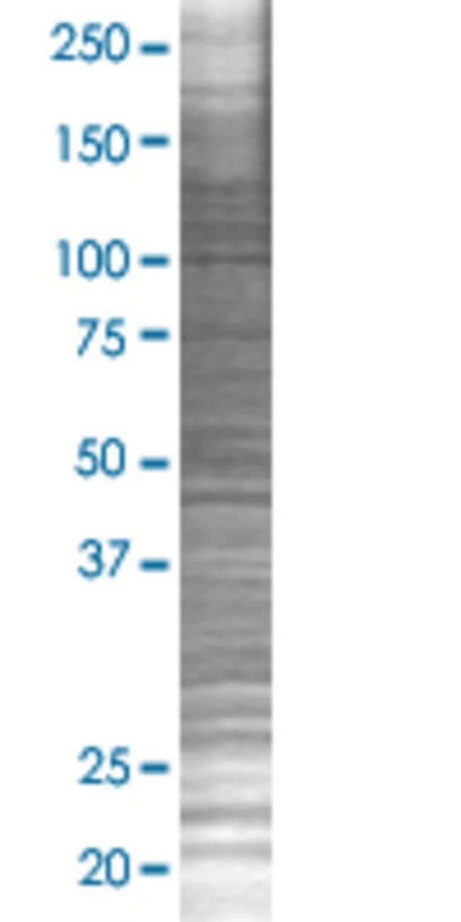 Abnova ILDR1 293T Cell Transient Overexpression Lysate (Denatured) 100µL:Life