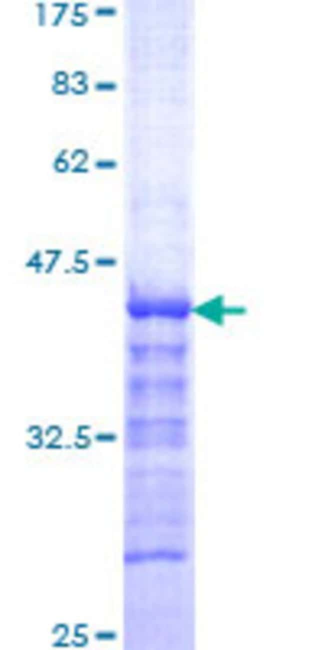 Abnova™Human SALF Partial ORF (NP_758515, 141 a.a. - 249 a.a.) Recombinant Protein with GST-tag at N-terminal 25μg Abnova™Human SALF Partial ORF (NP_758515, 141 a.a. - 249 a.a.) Recombinant Protein with GST-tag at N-terminal