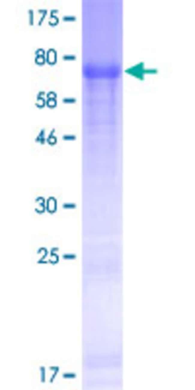 Abnova Human FAM149B1 Full-length ORF (AAH15394.1, 1 a.a. - 422 a.a.) Recombinant