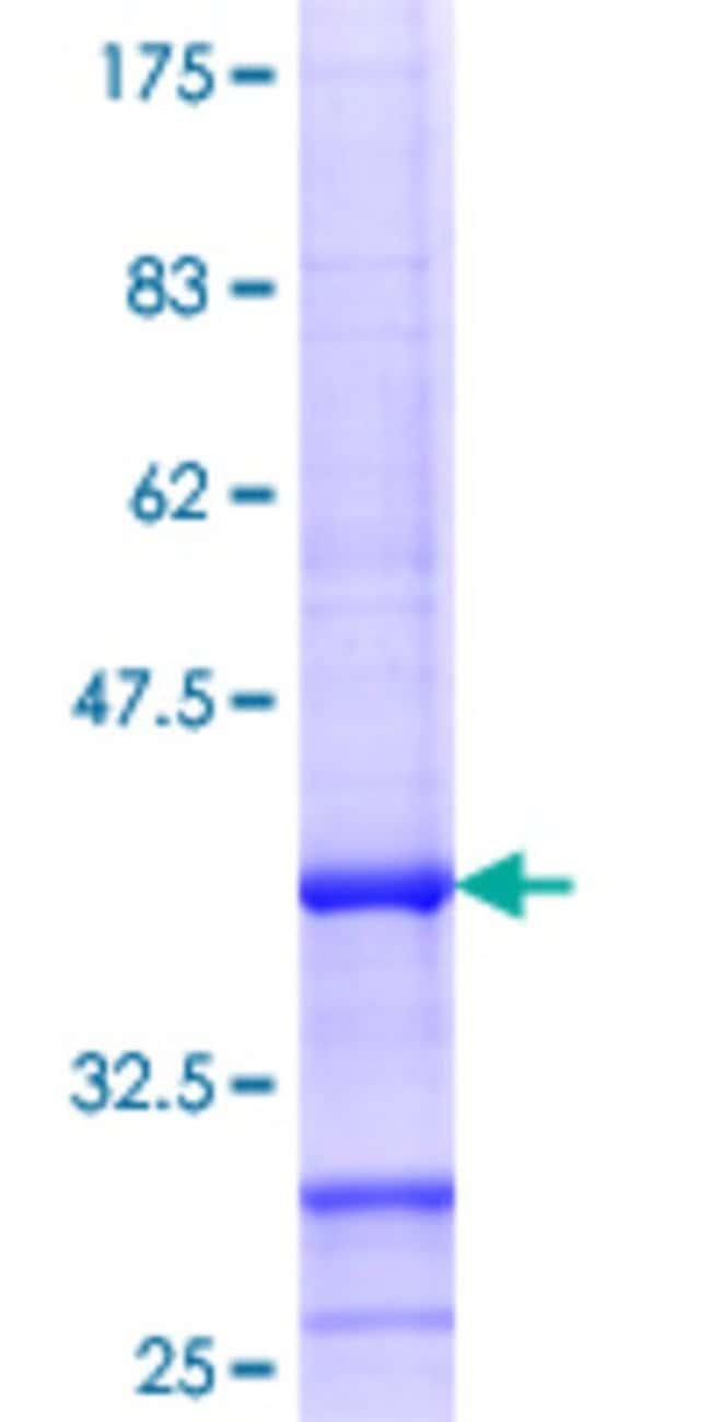 Abnova™Human MMAB Partial ORF (NP_443077.1, 1 a.a. - 100 a.a.) Recombinant Protein with GST-tag at N-terminal 25μg Abnova™Human MMAB Partial ORF (NP_443077.1, 1 a.a. - 100 a.a.) Recombinant Protein with GST-tag at N-terminal