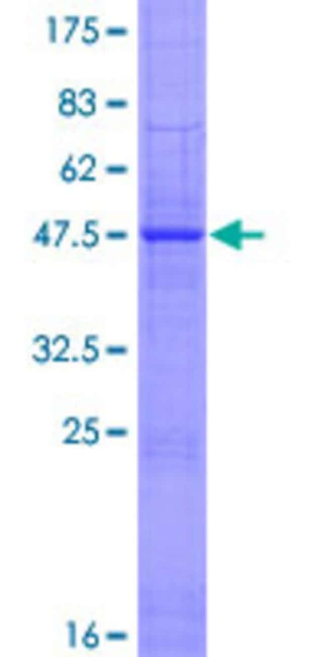 Abnova™Human IFNE1 Full-length ORF (NP_795372.1, 1 a.a. - 208 a.a.) Recombinant Protein with GST-tag at N-terminal 25μg Abnova™Human IFNE1 Full-length ORF (NP_795372.1, 1 a.a. - 208 a.a.) Recombinant Protein with GST-tag at N-terminal