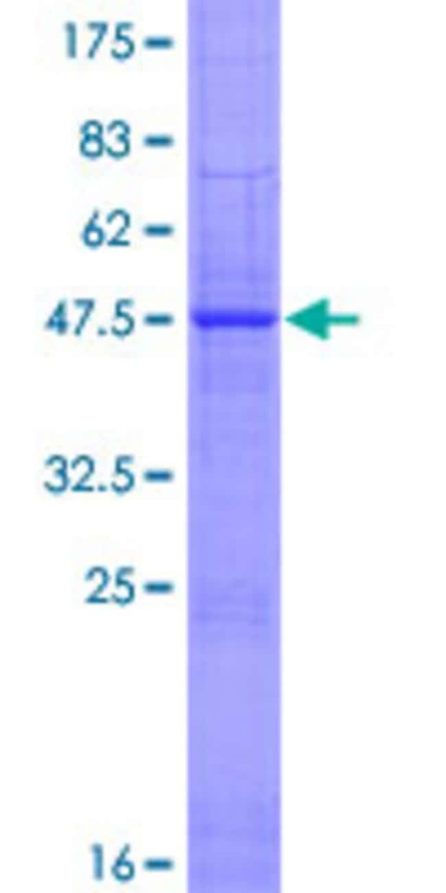 Abnova Human IFNE1 Full-length ORF (NP_795372.1, 1 a.a. - 208 a.a.) Recombinant