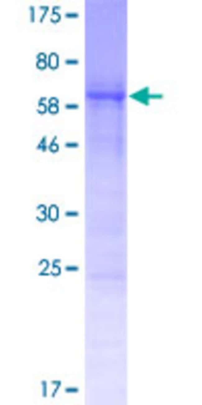 Abnova™Human CCDC84 Full-length ORF (NP_940891.1, 1 a.a. - 332 a.a.) Recombinant Protein with GST-tag at N-terminal 25μg Abnova™Human CCDC84 Full-length ORF (NP_940891.1, 1 a.a. - 332 a.a.) Recombinant Protein with GST-tag at N-terminal