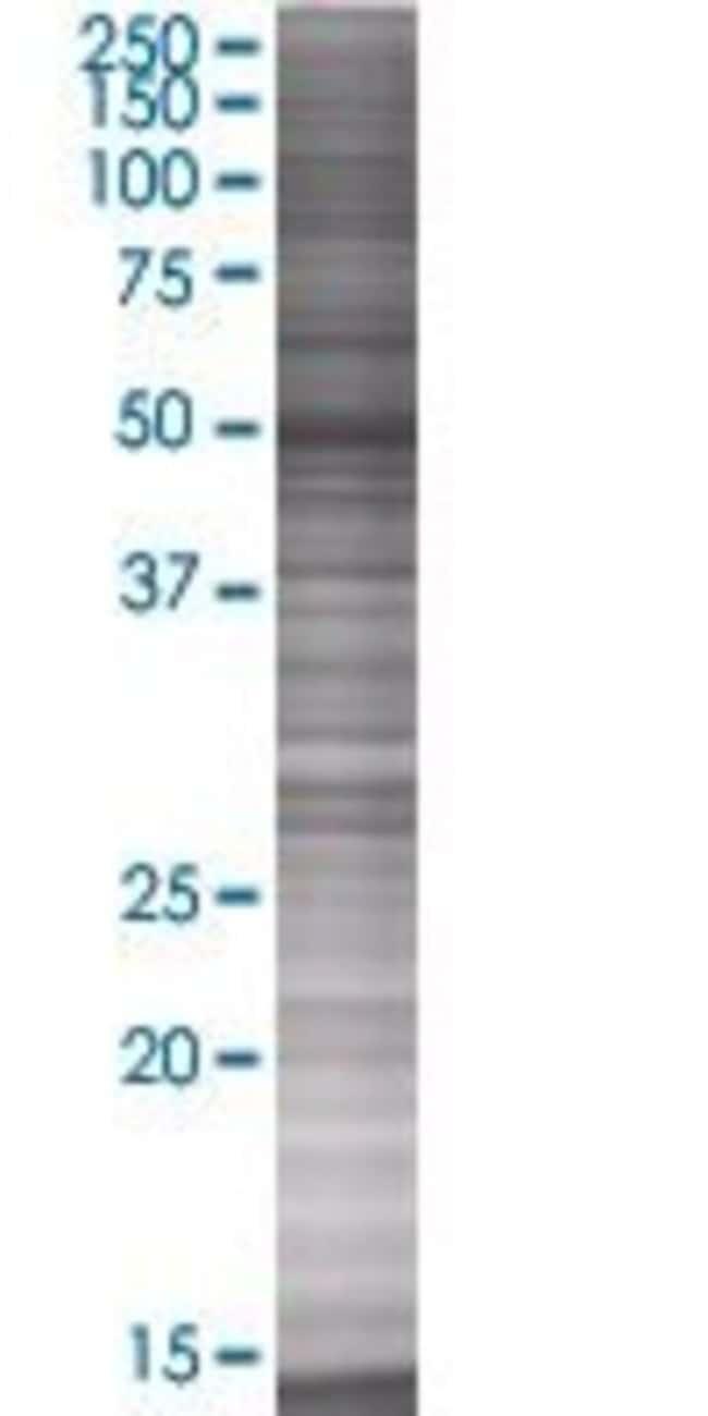 Abnova KRT6L 293T Cell Transient Overexpression Lysate (Denatured) 100µL:Life
