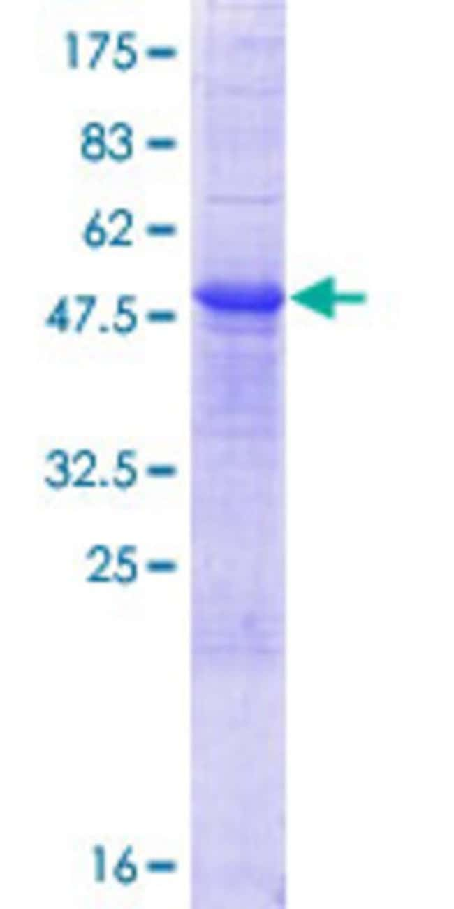 Abnova™Human RNASE10 Full-length ORF (NP_001012993.1, 1 a.a. - 216 a.a.) Recombinant Protein with GST-tag at N-terminal 10μg Abnova™Human RNASE10 Full-length ORF (NP_001012993.1, 1 a.a. - 216 a.a.) Recombinant Protein with GST-tag at N-terminal