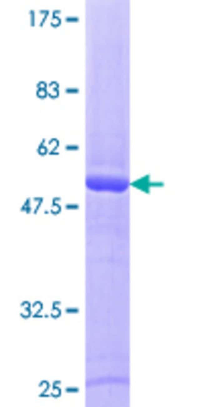 Abnova™Human RAB43 Full-length ORF (NP_940892.1, 1 a.a. - 212 a.a.) Recombinant Protein with GST-tag at N-terminal 10μg Abnova™Human RAB43 Full-length ORF (NP_940892.1, 1 a.a. - 212 a.a.) Recombinant Protein with GST-tag at N-terminal