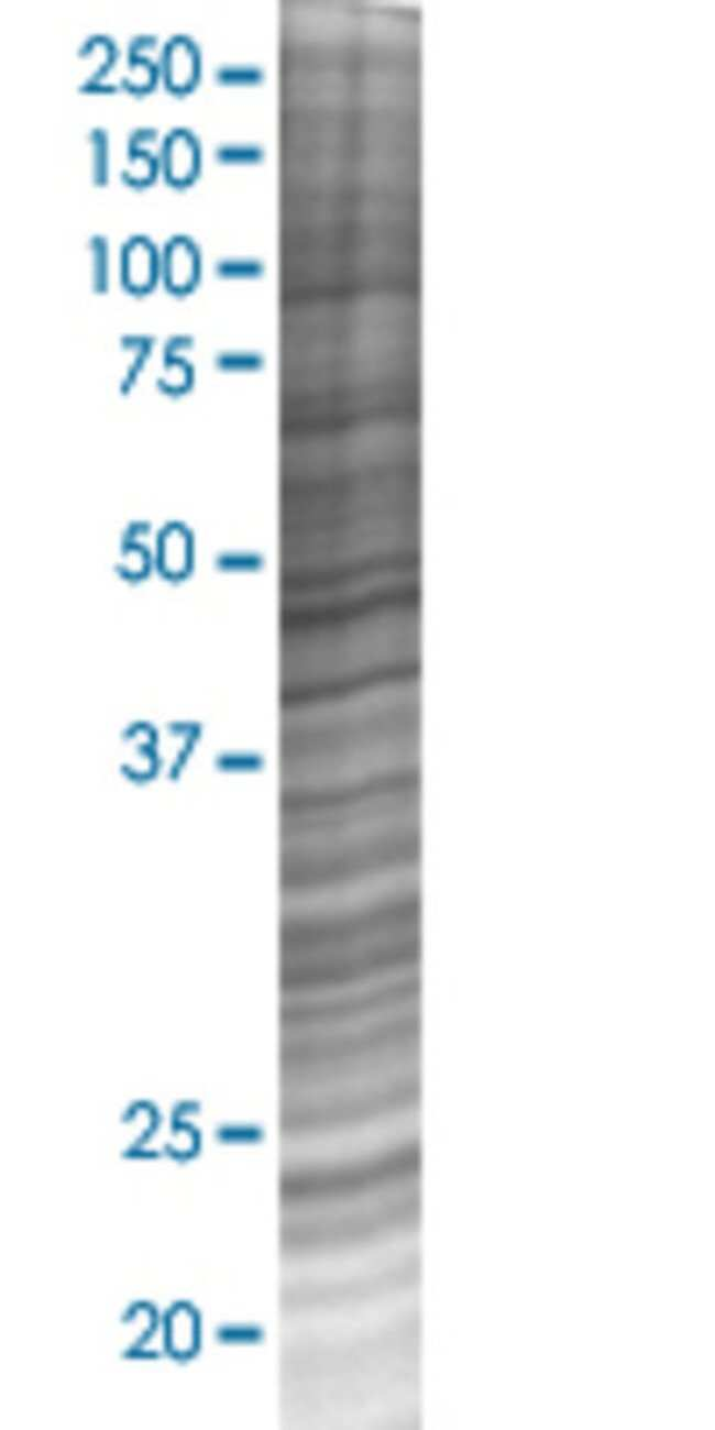Abnova RAB43 293T Cell Transient Overexpression Lysate (Denatured) 100µL:Life