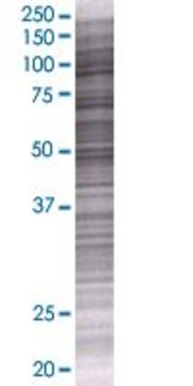 AbnovaANKRD45 293T Cell Transient Overexpression Lysate (Denatured) 100μL:Protein