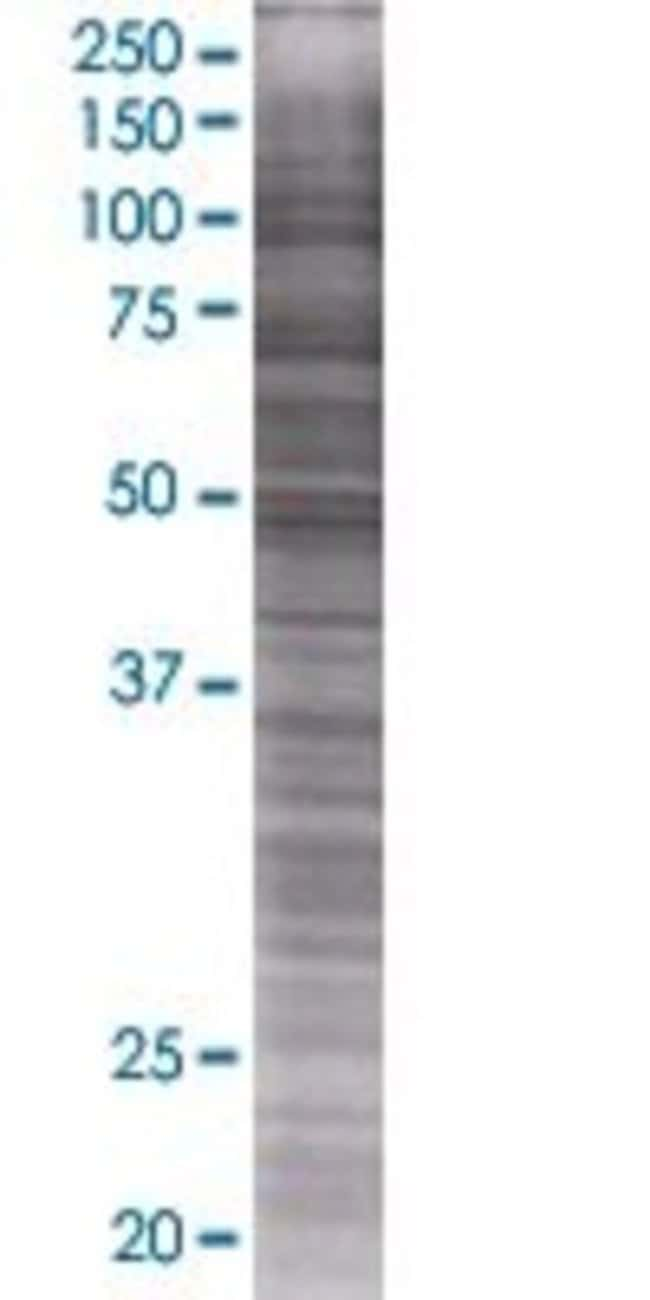 Abnova KLHL17 293T Cell Transient Overexpression Lysate (Denatured) 100µL:Life