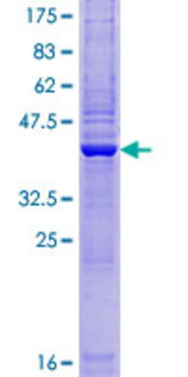 Abnova™Human ZBTB8OS Full-length ORF (AAH58843.1, 1 a.a. - 136 a.a.) Recombinant Protein with GST-tag at N-terminal 25μg Abnova™Human ZBTB8OS Full-length ORF (AAH58843.1, 1 a.a. - 136 a.a.) Recombinant Protein with GST-tag at N-terminal