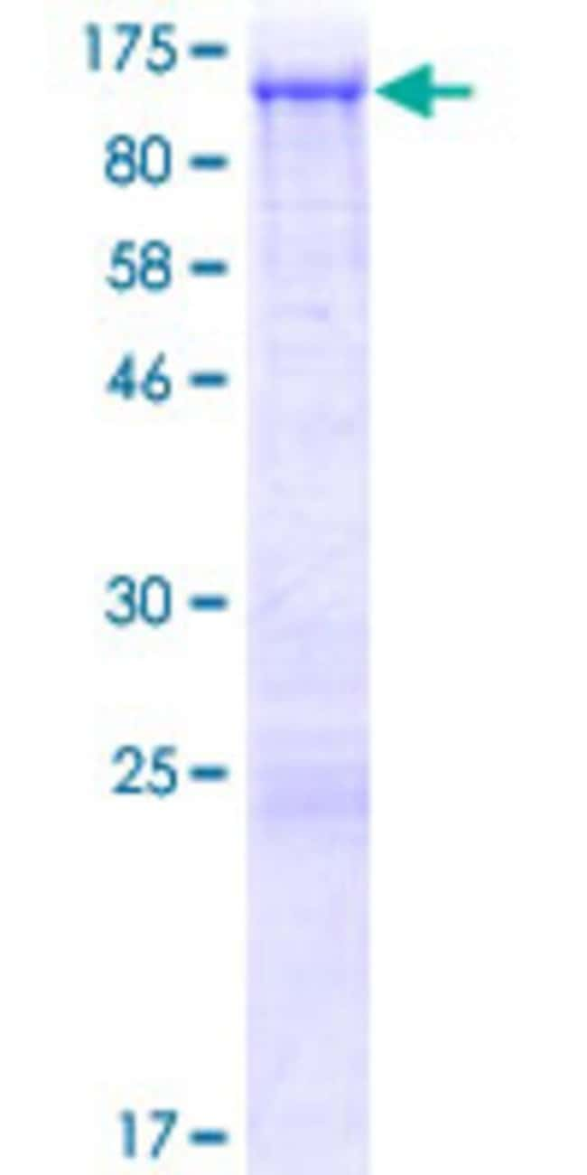 Abnova™Human NHSL2 Full-length ORF (NP_001013649.1, 1 a.a. - 709 a.a.) Recombinant Protein with GST-tag at N-terminal 10μg Abnova™Human NHSL2 Full-length ORF (NP_001013649.1, 1 a.a. - 709 a.a.) Recombinant Protein with GST-tag at N-terminal