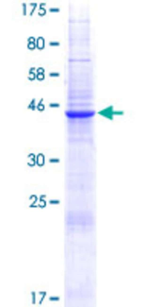 Abnova™Human CD300E Full-length ORF (AAI00889.1, 1 a.a. - 205 a.a.) Recombinant Protein with GST-tag at N-terminal 10μg Abnova™Human CD300E Full-length ORF (AAI00889.1, 1 a.a. - 205 a.a.) Recombinant Protein with GST-tag at N-terminal