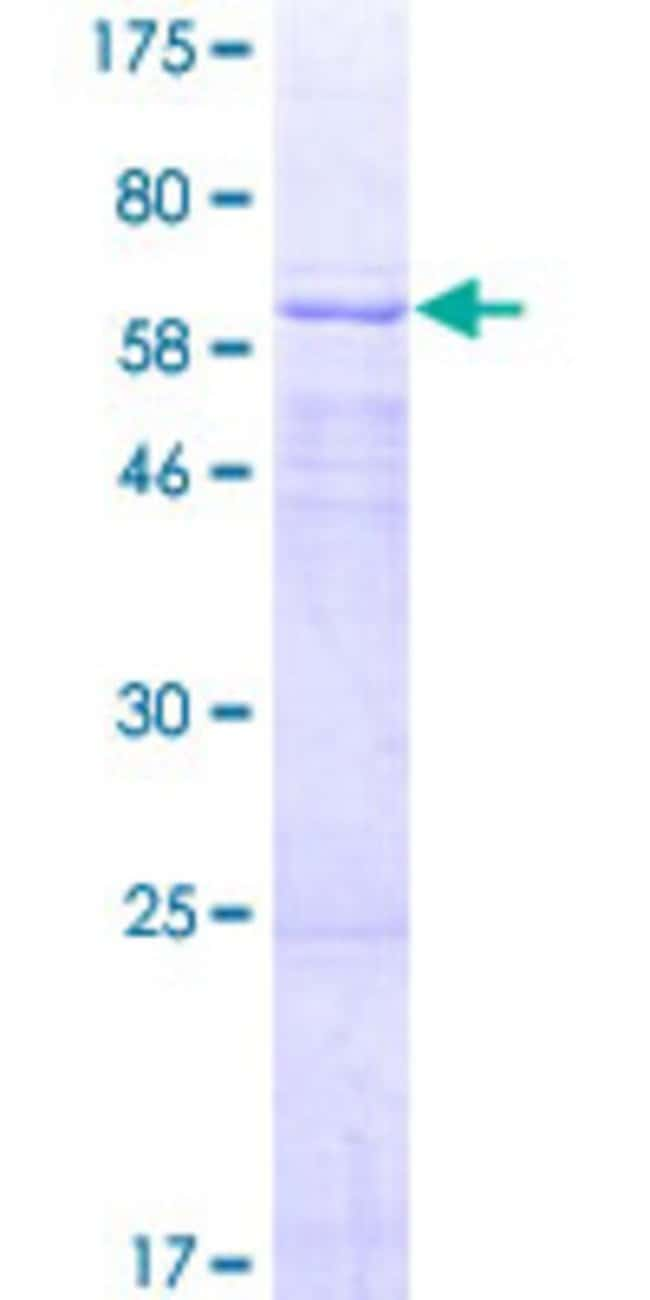 AbnovaHuman AADACL2 Full-length ORF (NP_997248.1, 1 a.a. - 379 a.a.) Recombinant