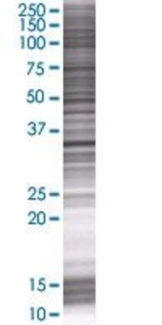 Abnova PLCXD3 293T Cell Transient Overexpression Lysate (Denatured) 100µL:Life