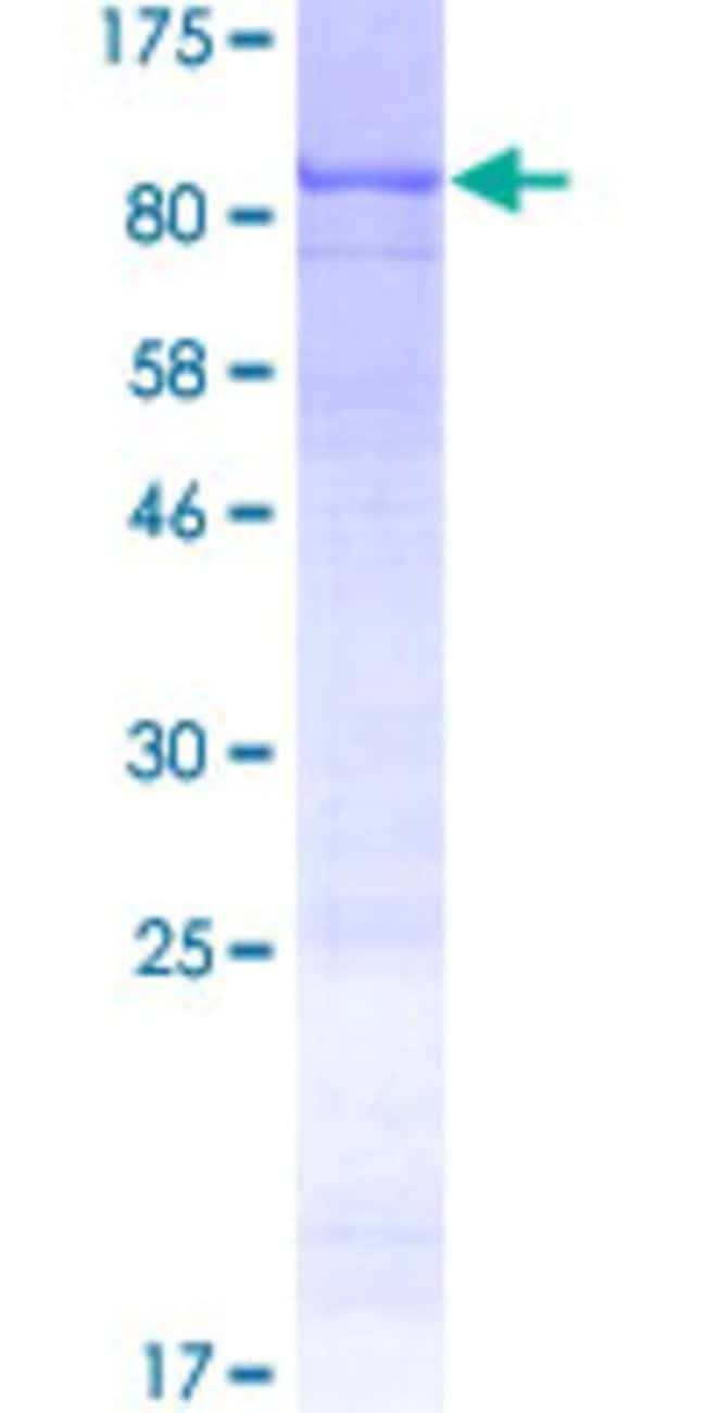 AbnovaHuman ARSH Full-length ORF (AAI53086.1, 1 a.a. - 562 a.a.) Recombinant