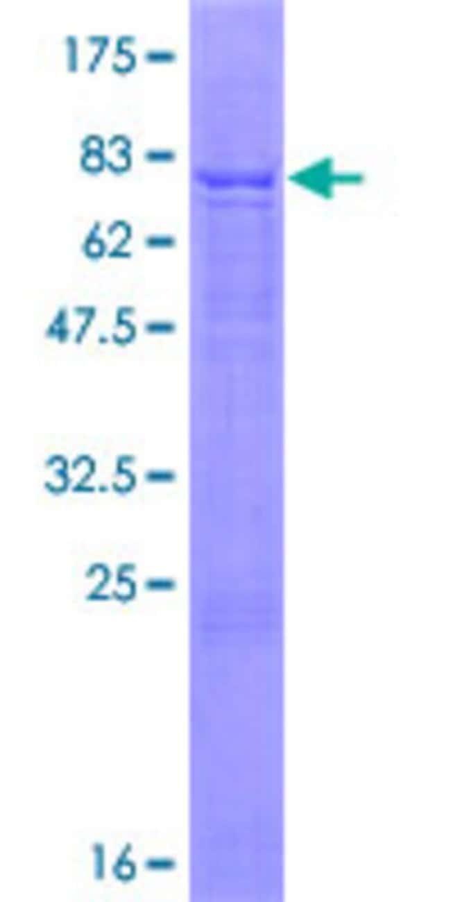 AbnovaHuman AMIGO2 Full-length ORF (NP_862830.1, 1 a.a. - 522 a.a.) Recombinant