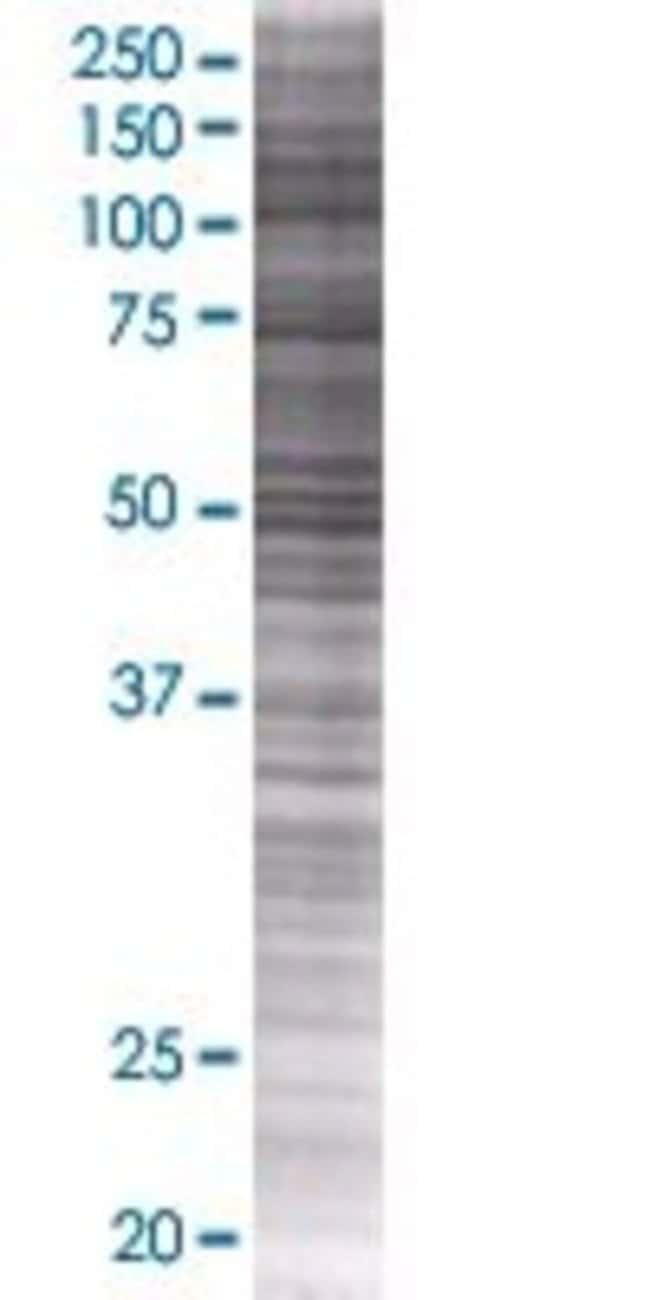 AbnovaANKDD1A 293T Cell Transient Overexpression Lysate (Denatured) 100μL:Protein