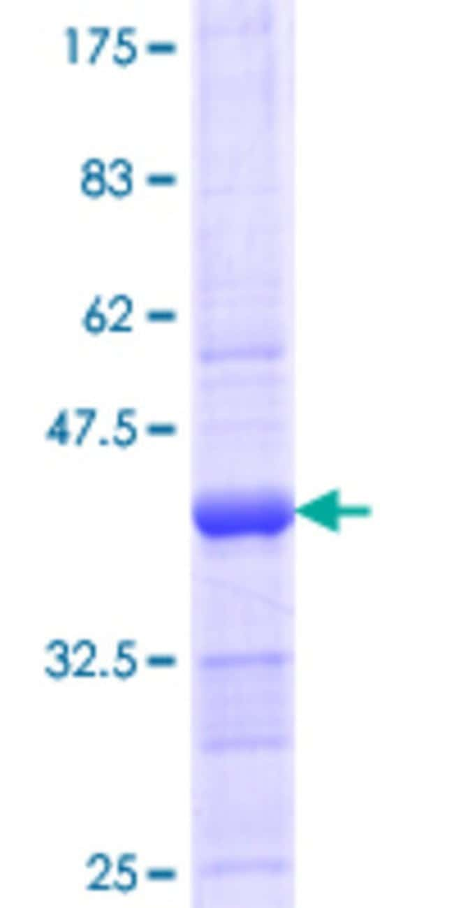 Abnova™Human NUP43 Partial ORF (NP_078923.3, 281 a.a. - 380 a.a.) Recombinant Protein with GST-tag at N-terminal 25μg Abnova™Human NUP43 Partial ORF (NP_078923.3, 281 a.a. - 380 a.a.) Recombinant Protein with GST-tag at N-terminal