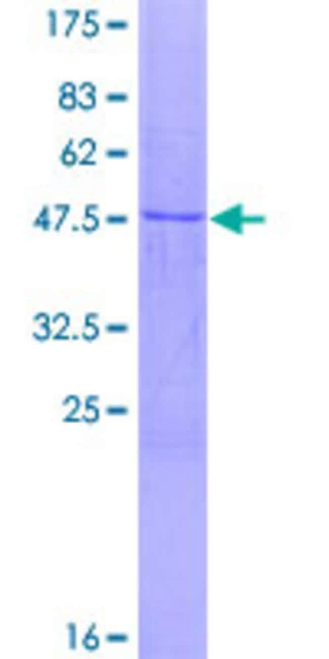 Abnova Human NMNAT3 Full-length ORF (NP_835471.1, 1 a.a. - 215 a.a.) Recombinant