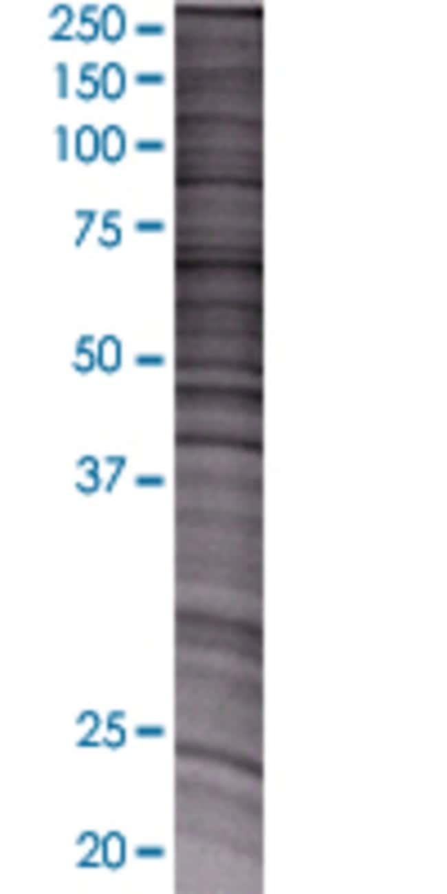 Abnova NMNAT3 293T Cell Transient Overexpression Lysate (Denatured) 100µL:Life