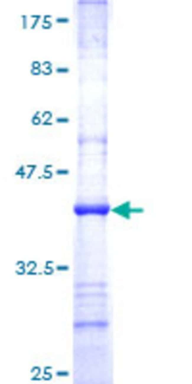 Abnova™ Human NDUFS7 Partial ORF (NP_077718, 114 a.a. - 213 a.a.) Recombinant Protein with GST-tag at N-terminal 10μg Abnova™ Human NDUFS7 Partial ORF (NP_077718, 114 a.a. - 213 a.a.) Recombinant Protein with GST-tag at N-terminal