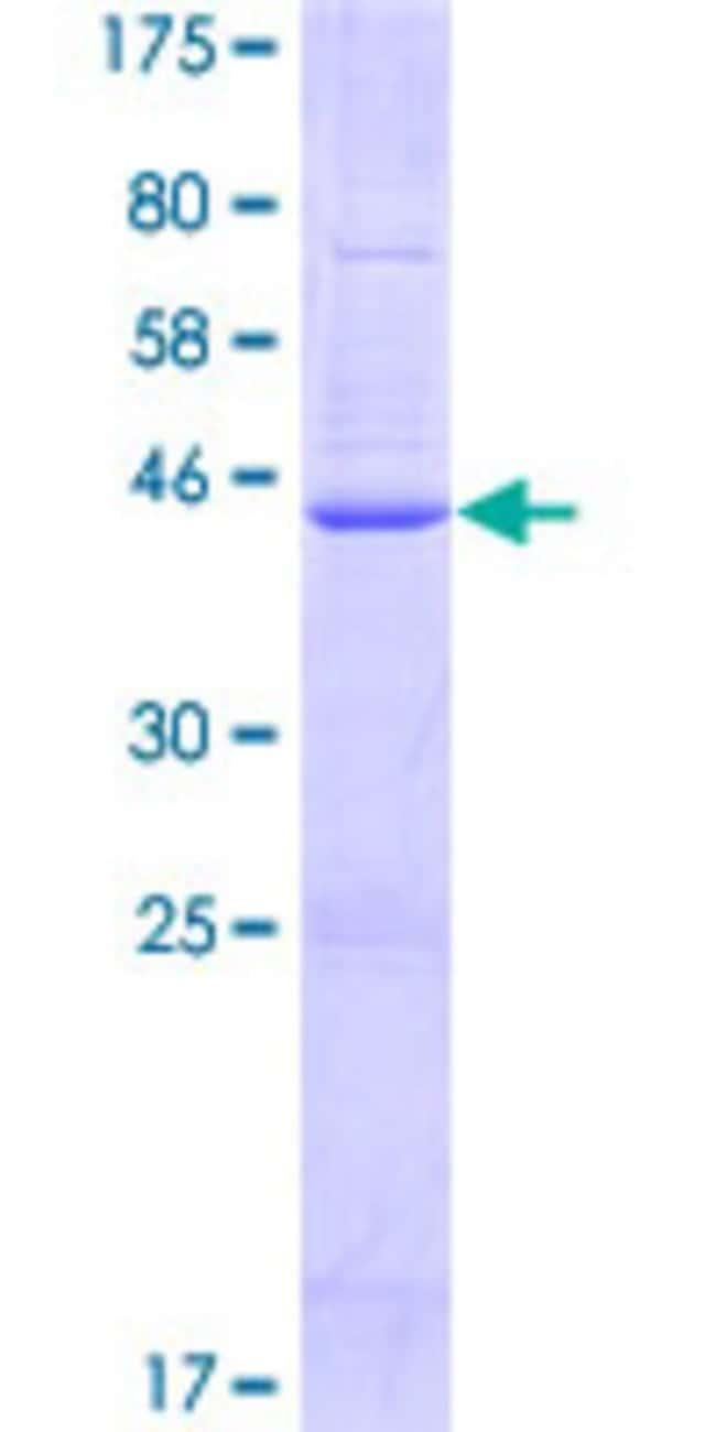 Abnova™Human TMEM179B Full-length ORF (NP_955369.1, 1 a.a. - 219 a.a.) Recombinant Protein with GST-tag at N-terminal 25μg Abnova™Human TMEM179B Full-length ORF (NP_955369.1, 1 a.a. - 219 a.a.) Recombinant Protein with GST-tag at N-terminal