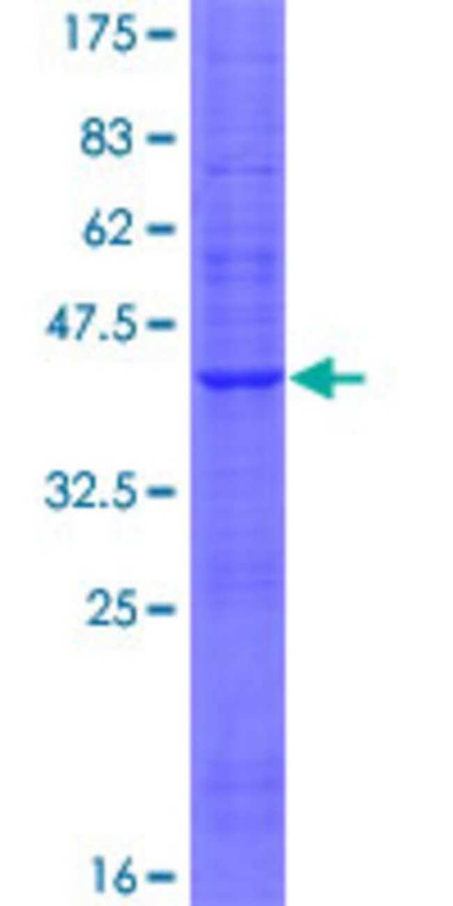 Abnova™Human LOC374491 Full-length ORF (AAH45761.1, 1 a.a. - 126 a.a.) Recombinant Protein with GST-tag at N-terminal 10μg Abnova™Human LOC374491 Full-length ORF (AAH45761.1, 1 a.a. - 126 a.a.) Recombinant Protein with GST-tag at N-terminal