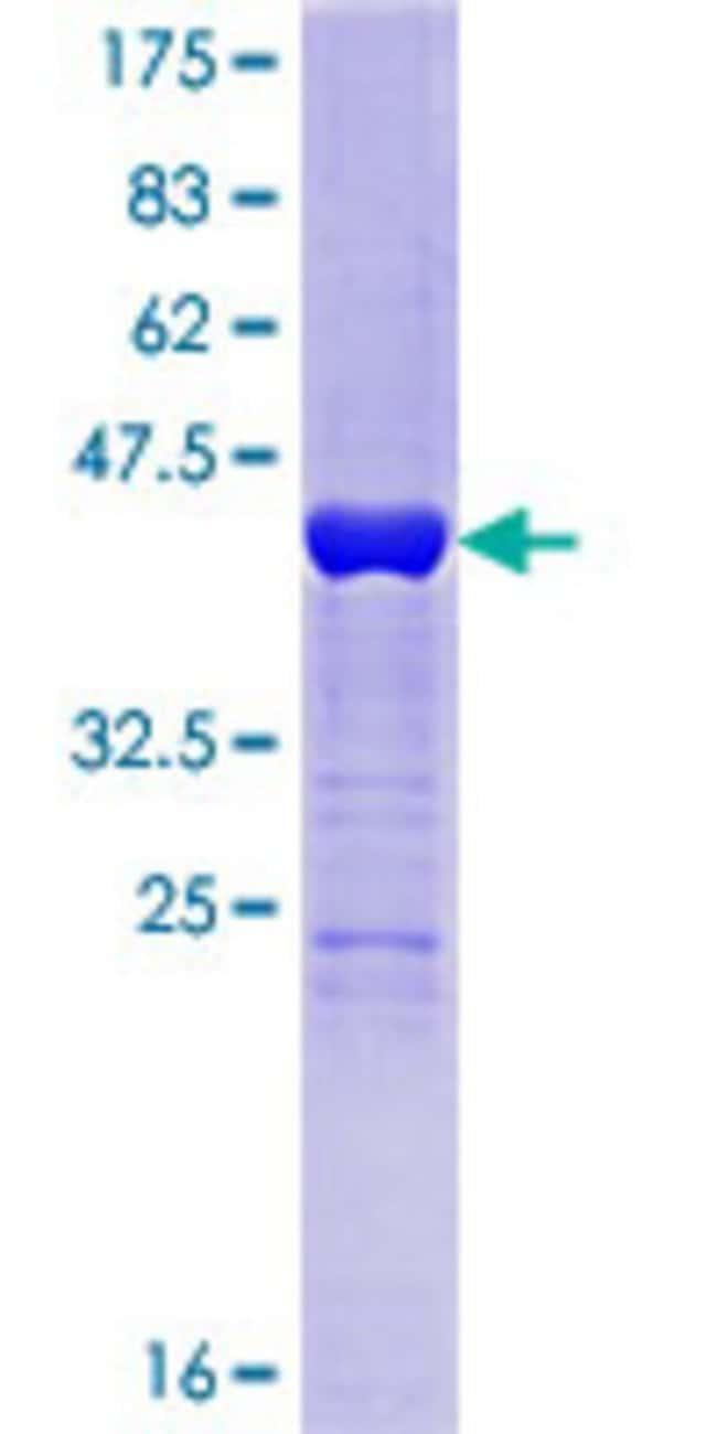 Abnova Human HDDC3 Full-length ORF (NP_940929.1, 1 a.a. - 140 a.a.) Recombinant