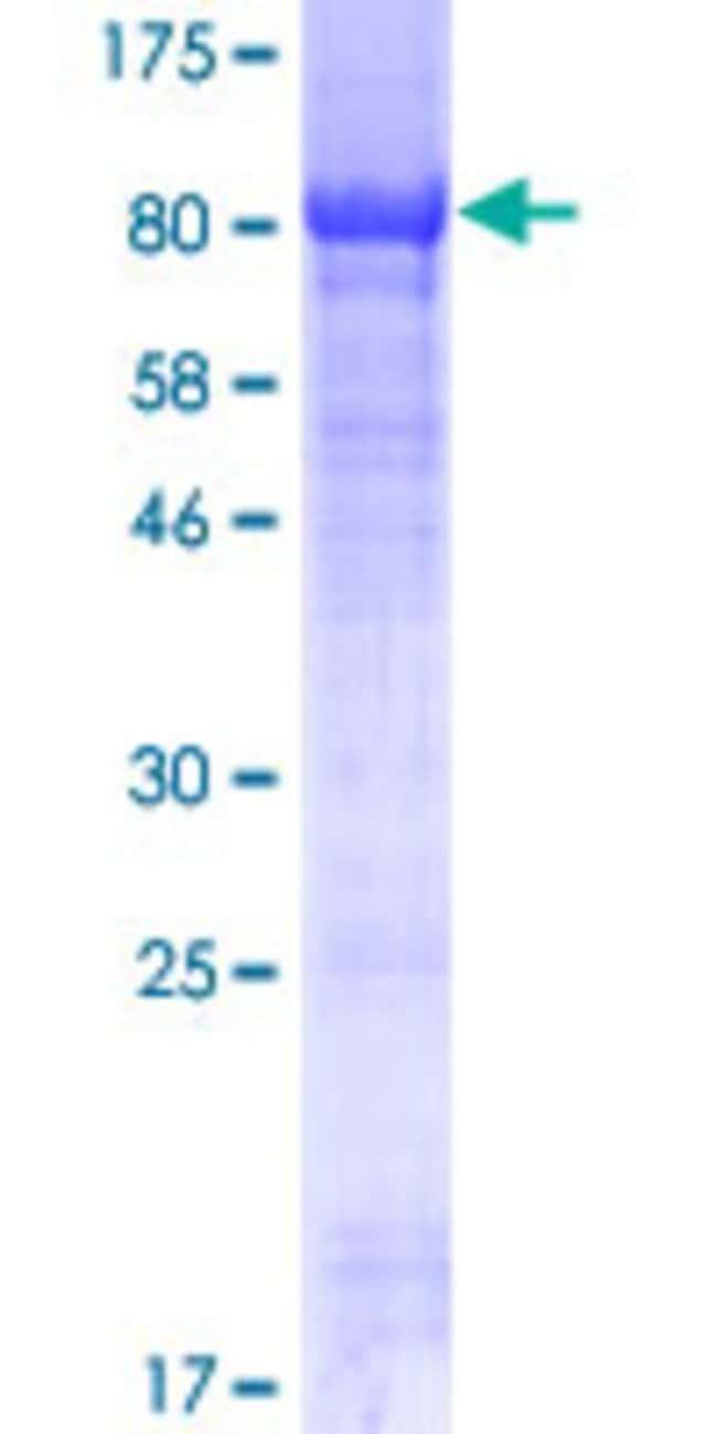 Abnova Human PI4KAP2 Full-length ORF (AAI41653.1, 1 a.a. - 592 a.a.) Recombinant